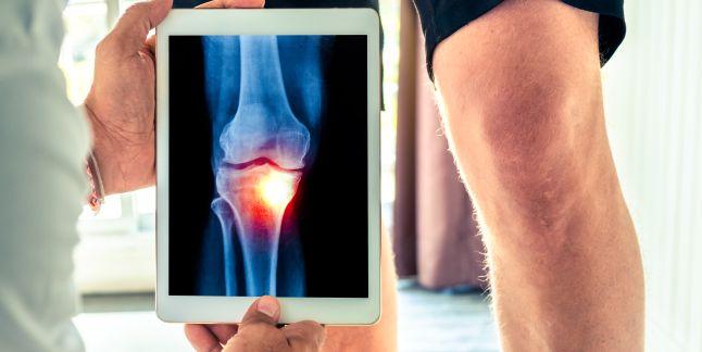 tratamentul entorsei genunchiului)