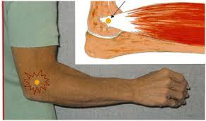 tratamentul epicondilitei articulare a cotului lateral)
