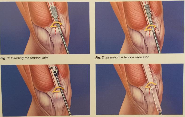 tratamentul hemartrozei genunchiului în urma leziunilor)