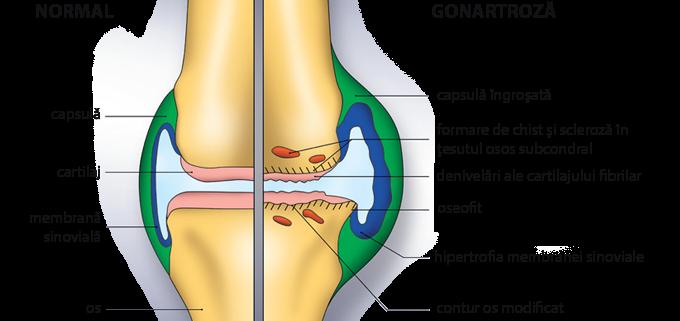 tratamentul ligamentelor sfâșiate ale genunchiului