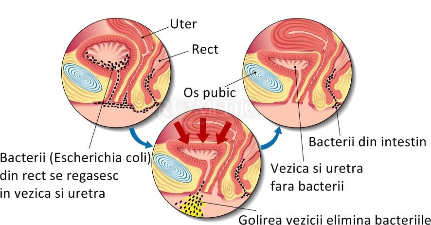 tratamentul simptomelor de infecție articulară)