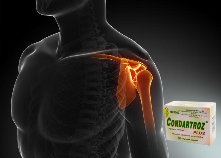 ultimele medicamente pentru tratamentul artrozei
