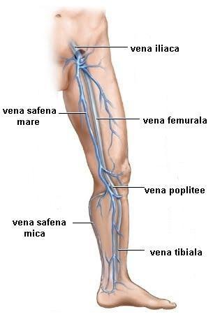 umflarea varicelor genunchiului)