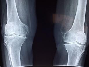 Urmăriți boala genunchiului