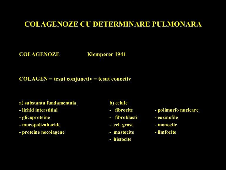 vasculită sistemică boală a țesutului conjunctiv