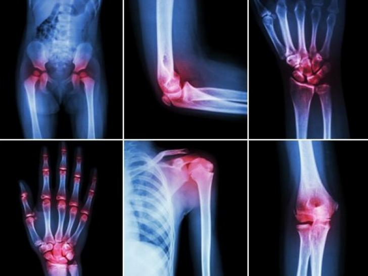 Ce vindecătorii tratează artrita