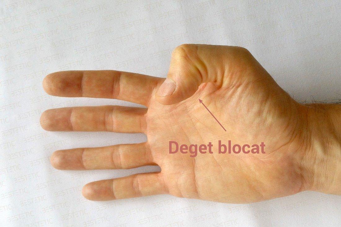umflarea articulației degetului arătător)