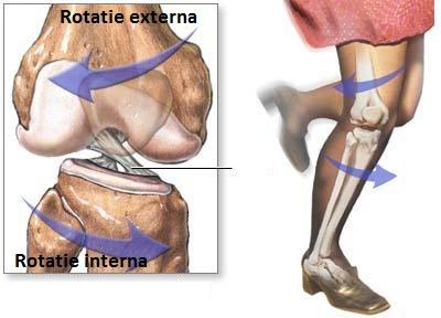 edem cu ruperea ligamentelor articulației genunchiului