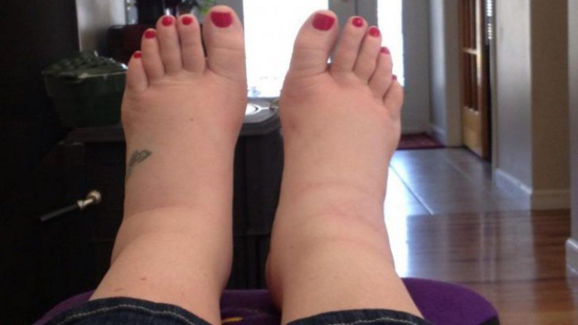 umflarea articulației primului picior)