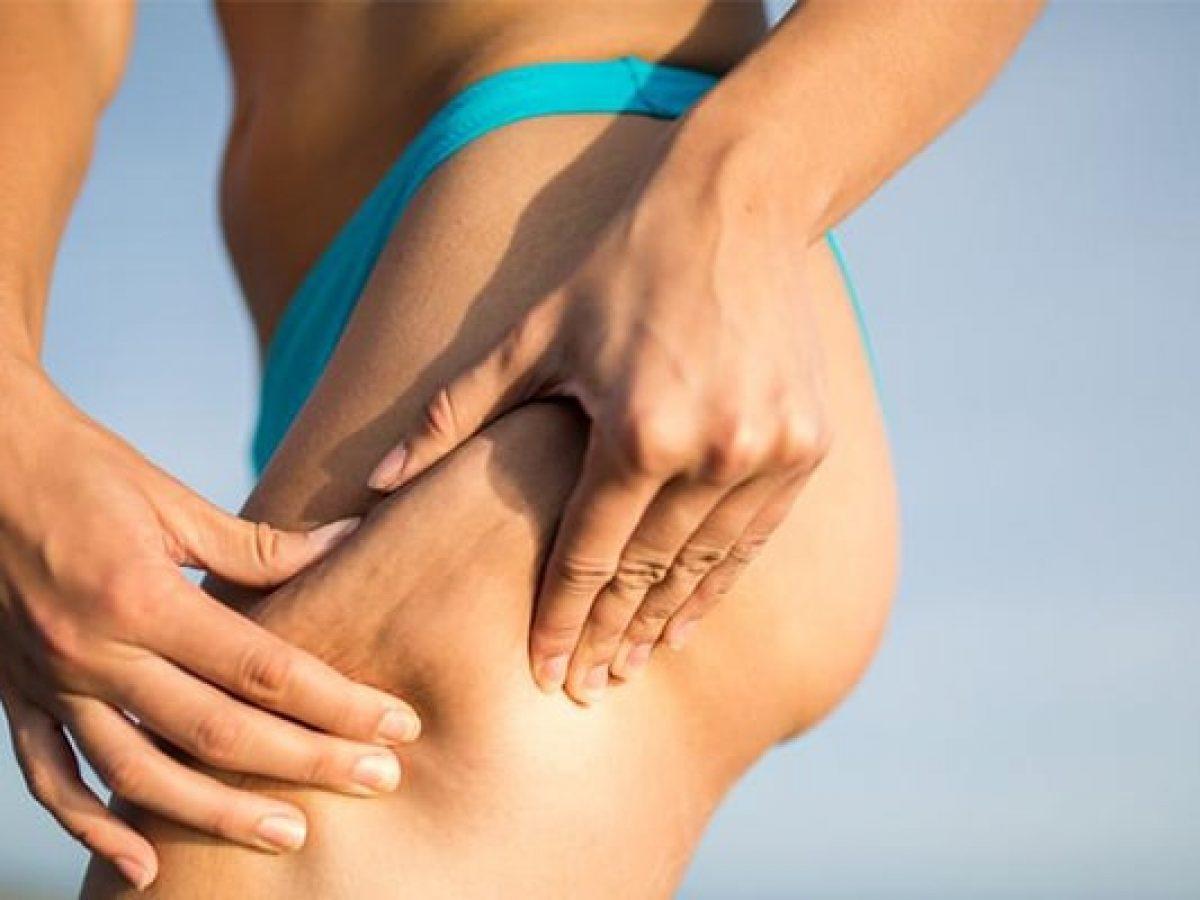 Osteoartrită