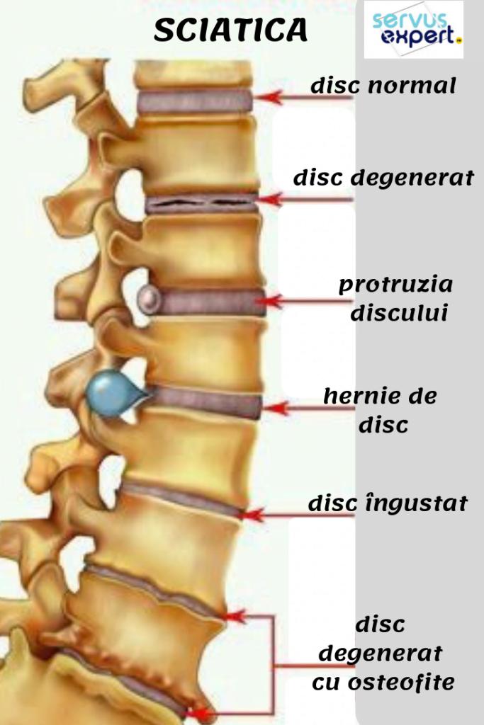 medicamente pentru durerea articulațiilor și a coloanei vertebrale)