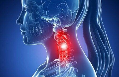 spondiloza artroza cervicala