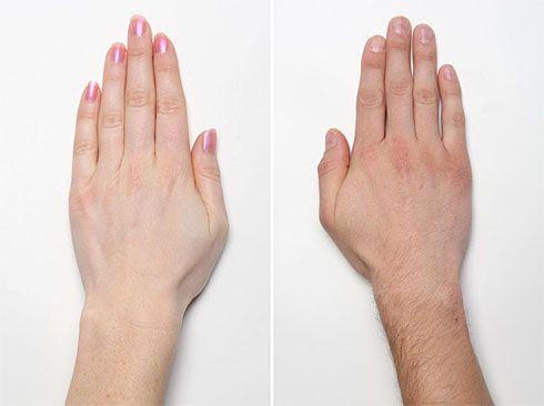 artrita degete maini