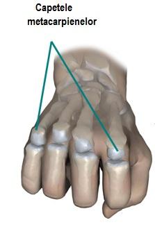 durere în articulațiile umărului în timpul masajului dureri articulare în pediatrie