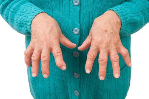 mici articulații ale mâinii doare