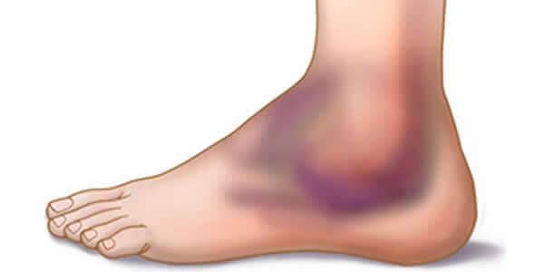 poliartrita a simptomelor și tratamentului articulației gleznei