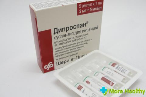 injecție de durere articulară diprospan dureri de șold 3 trimestru