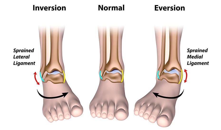 tratamentul artrozei gleznei după accidentare