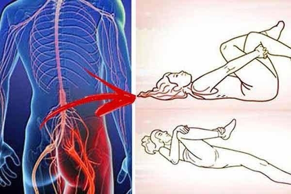 dureri de sold nervul sciatic