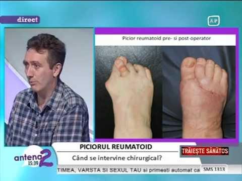tratamentul artrozei metatarsofangangiene)
