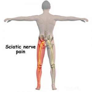 Remedii pentru durerile cauzate de nervul sciatic