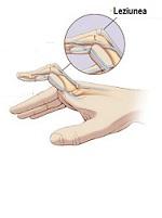 Deteriorarea articulației pe deget - Problemele articulației pumnului   Ottobock RO