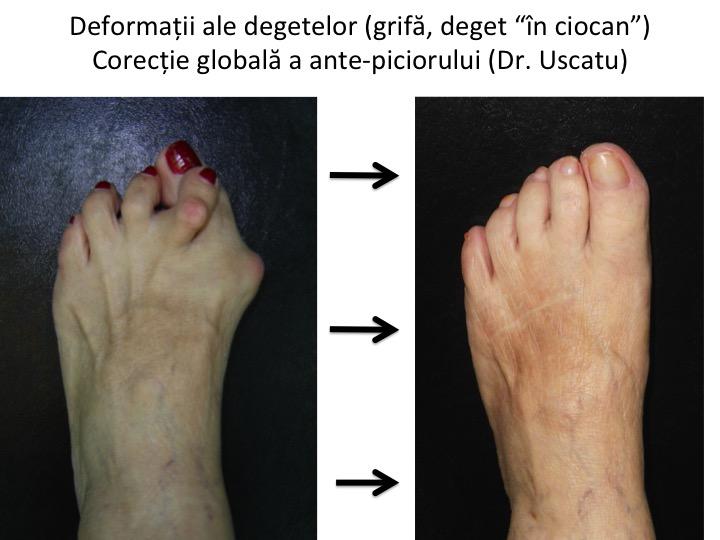 articulațiile degetelor degetelor de la picioare doare