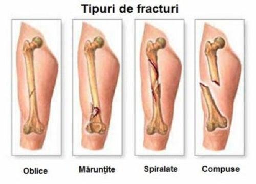 uluitor sub tratamentul de etanșare a genunchiului