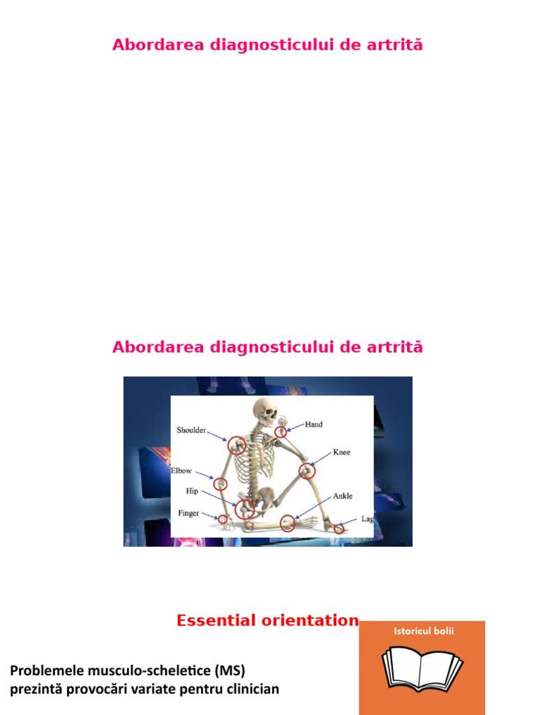 hip artrita pierde in greutate pierde grăsime în fabulă 2