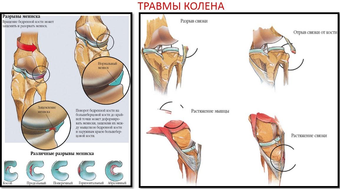articulație dureroasă după presarea bancului