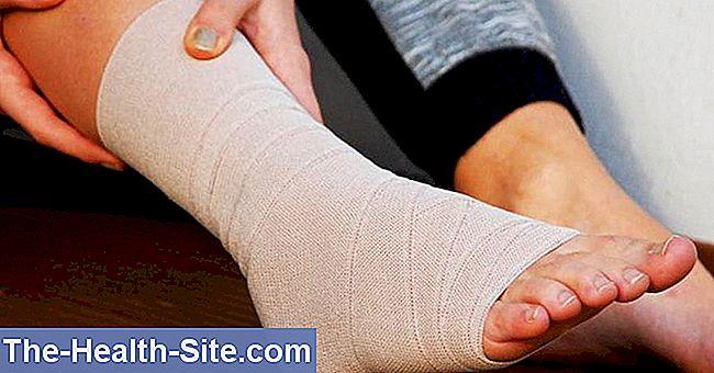 cum să consolidezi articulația gleznei după o accidentare)