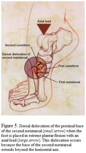 Tratamentul de luxație articulară Lysfranc durere în articulațiile picioarelor în picioare