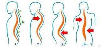 boli ale coloanei vertebrale și simptomele articulațiilor