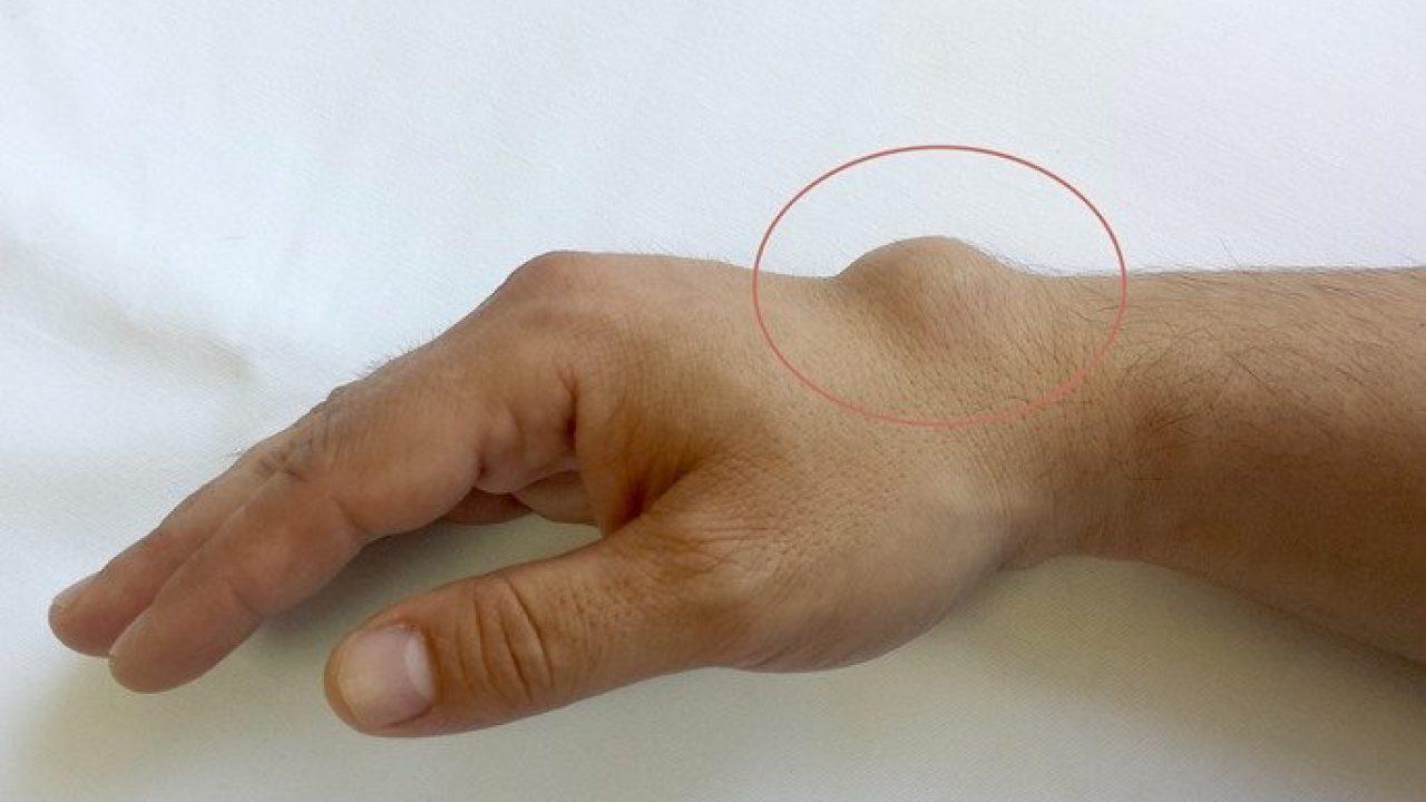 Articulația pe deget doare