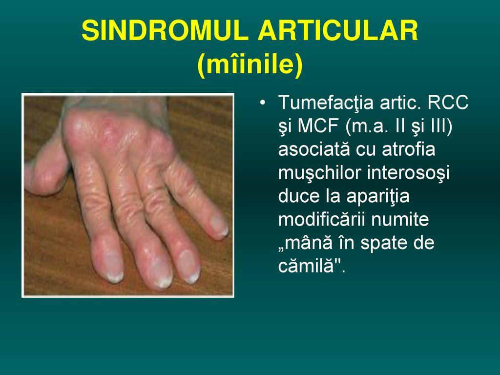 boală articulară cu boală hepatică unguente homeopate pentru osteochondroza coloanei vertebrale cervicale