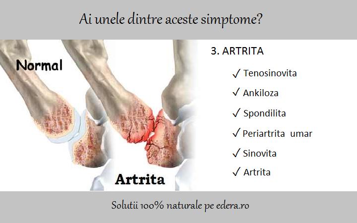 Inflamația tendoanelor simptomelor periartritei genunchiului - Tendinita genunchiului