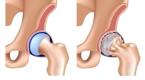 tratamentul coxartrozei artrozei
