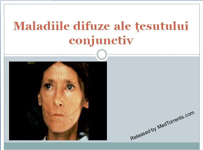 semne de boală a țesutului conjunctiv