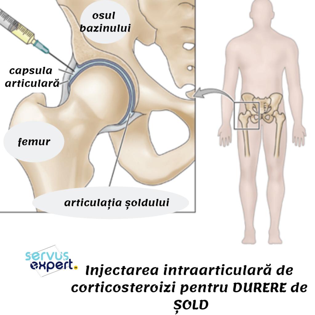 Durere în articulația șoldului, care sunt utilizate injecții - Ce articulații pot răni