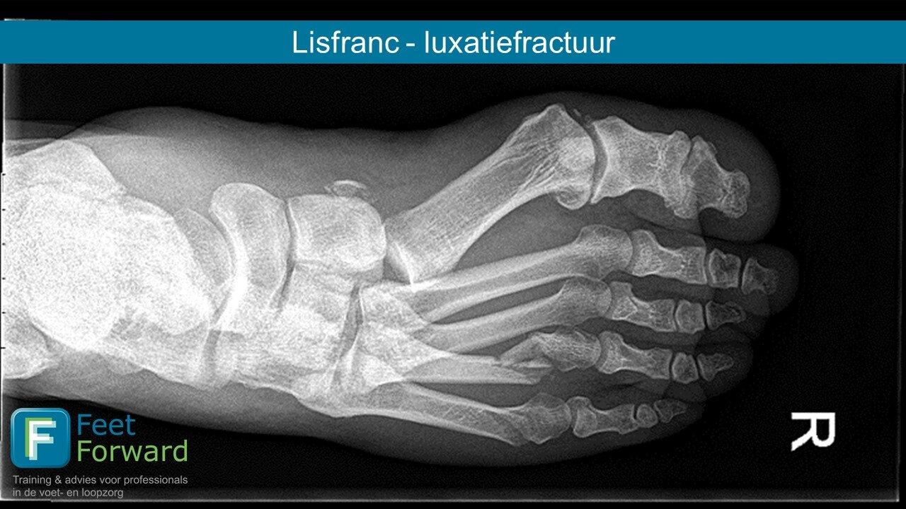 Tratamentul de luxație articulară Lysfranc articulațiile epstein barr doare