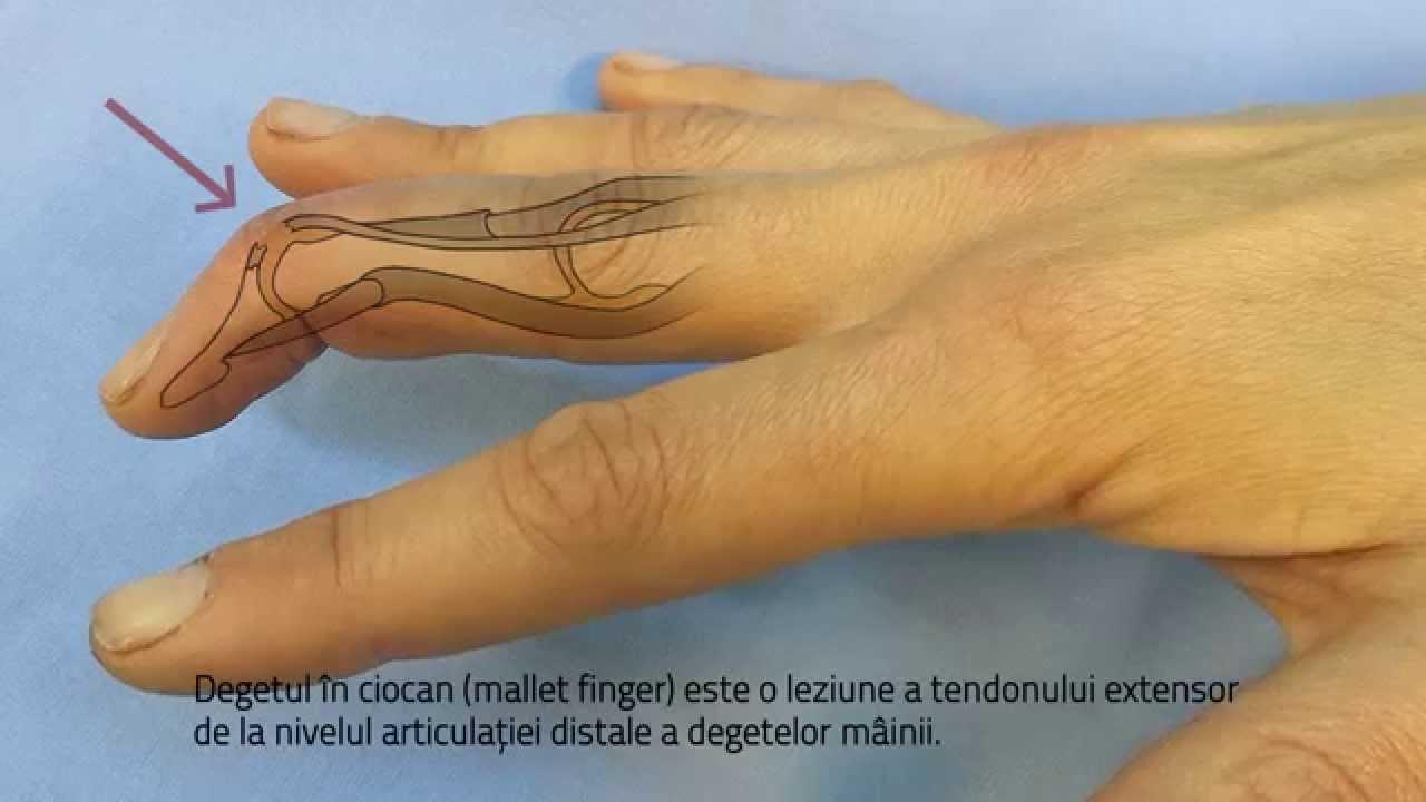 articulație dureroasă a degetului umflat