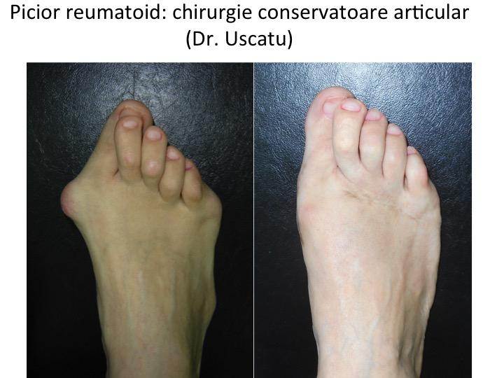 artroza picior poze