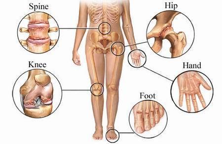 cauza deformării artrozei unei articulații)