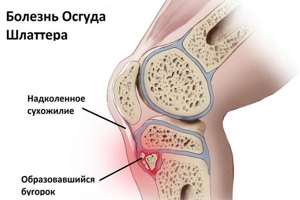 boli inflamatorii ale articulațiilor și ligamentelor)