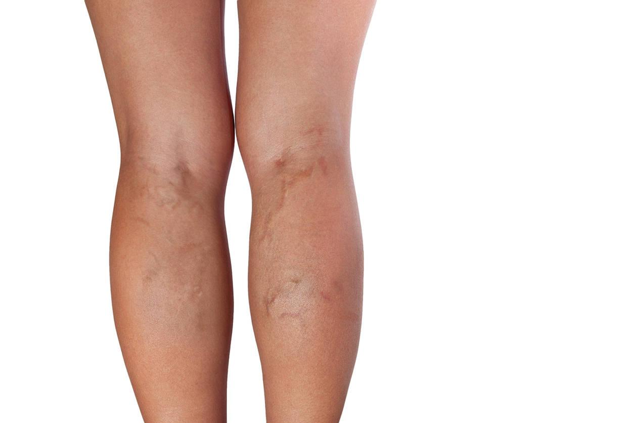 preparate pentru bolile picioarelor varicoase)