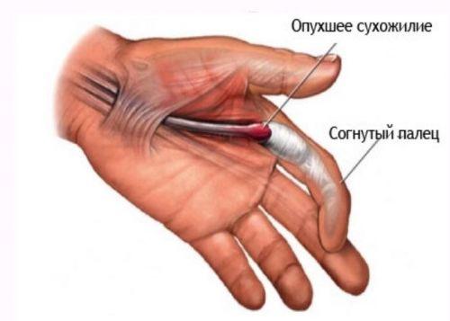 datorită căreia articulațiile degetelor pot răni)