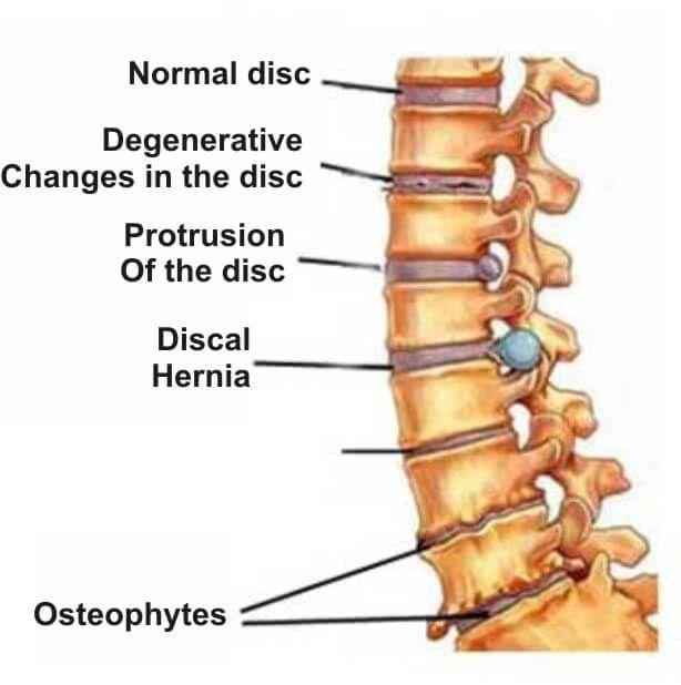 metoda pentru tratamentul osteocondrozei și articulațiilor)