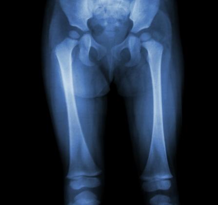 durere în articulațiile picioarelor la copii)