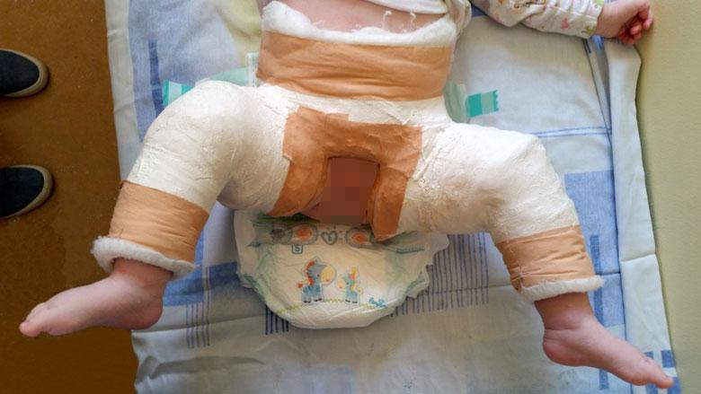 displazia de șold în 3 luni de tratament