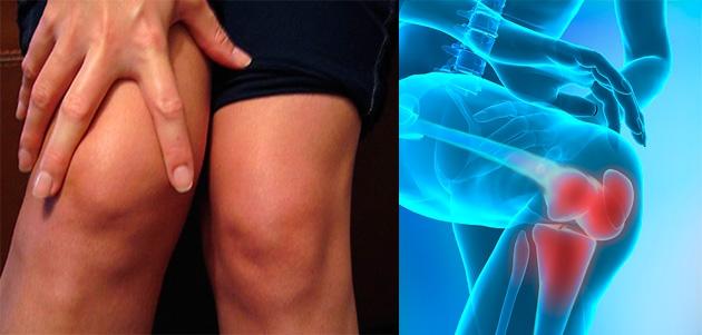 durere în articulațiile picioarelor cu un brusture